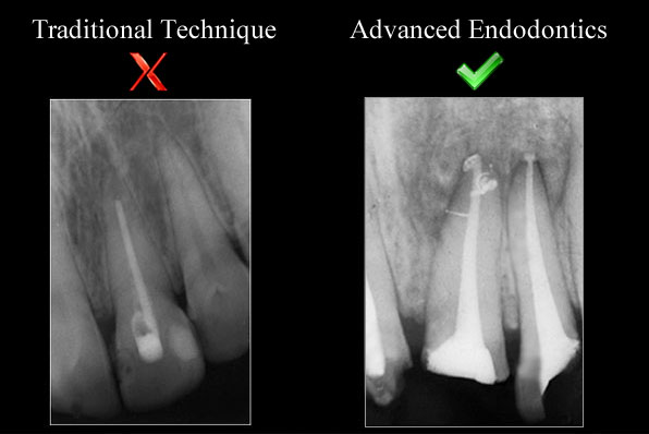 Advanced Endodontic Center - Endodontic Courses in India By Dr  Uday